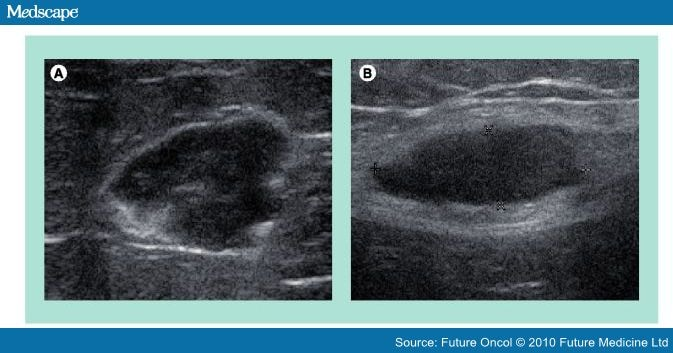 Ultrasound Guided Excision Of Nonpalpable Malignant Tumors
