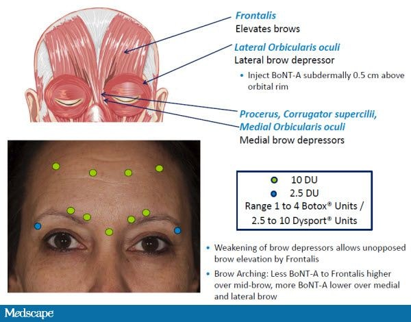 Brow shaping enhancement with botulinum neurotoxin type a to identify the point at which bont a should be injected because eyebrow position varies considerably especially in women because of tweezing ccuart Choice Image
