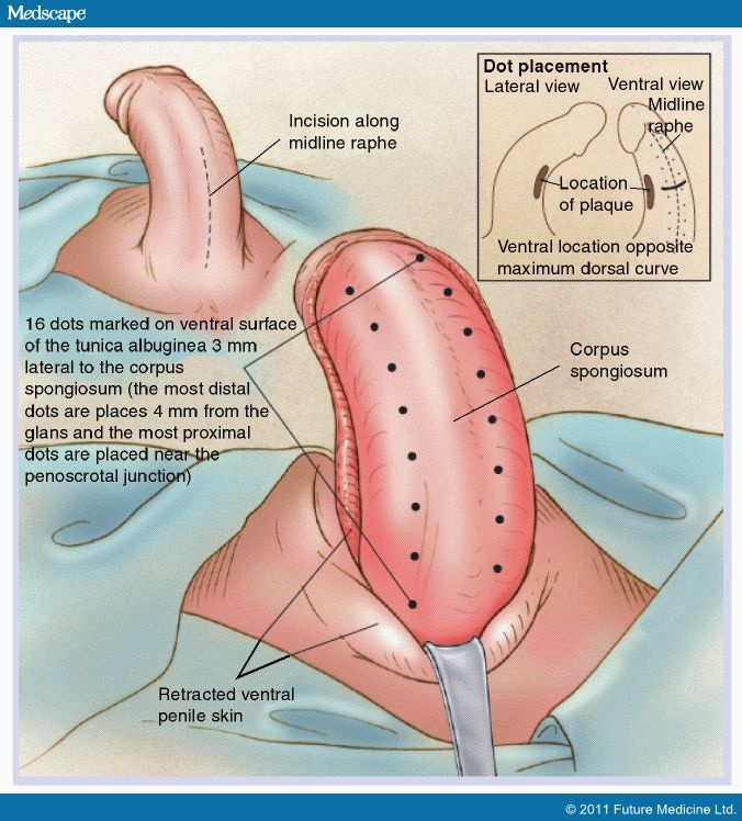 Management Of Peyronies Disease In The Aging Male