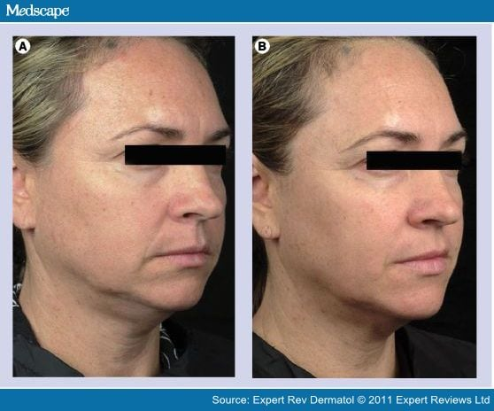 Nonablative Radiofrequency In The Rejuvenation Of The Skin