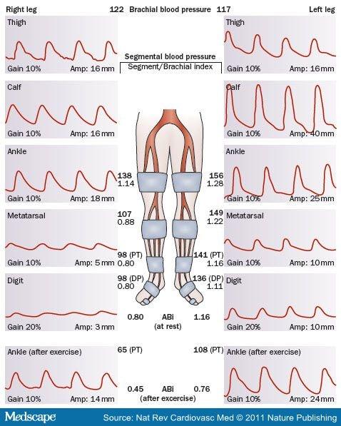 Doppler segmental pressure study