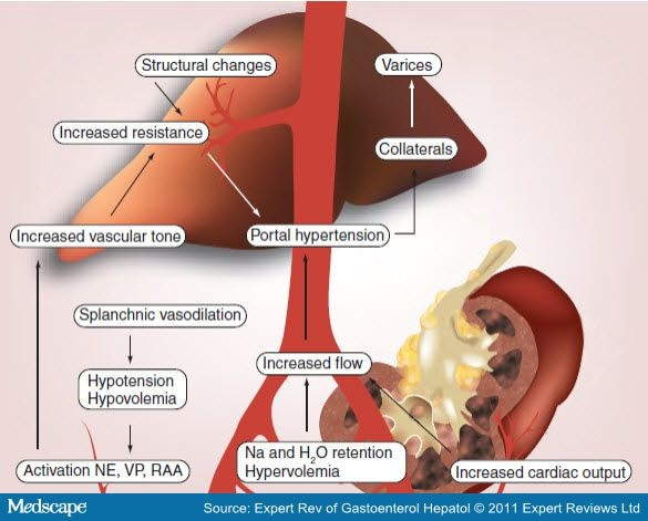 Acute On Chronic Liver Failure Current Concepts On Definition