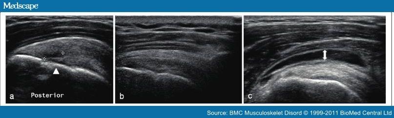 Ulei eficient pentru dureri articulare