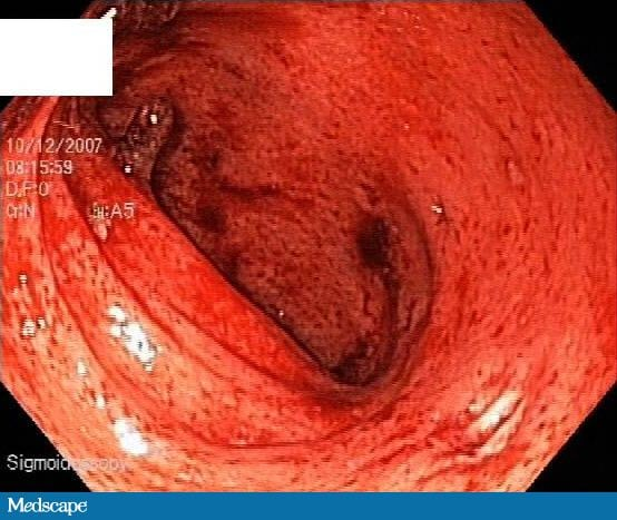 A 45-Year-Old Man With Rectal Bleeding, Urgency, and Diarrhea