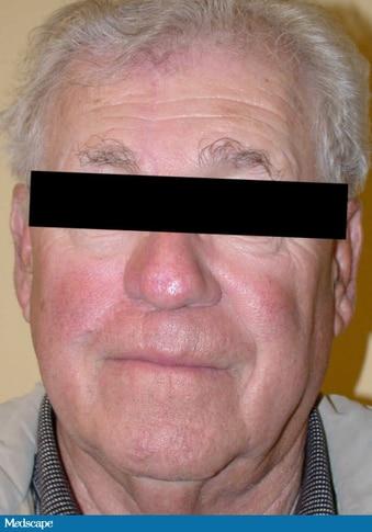 Facial and Nasal Cancer Reconstruction Case Study