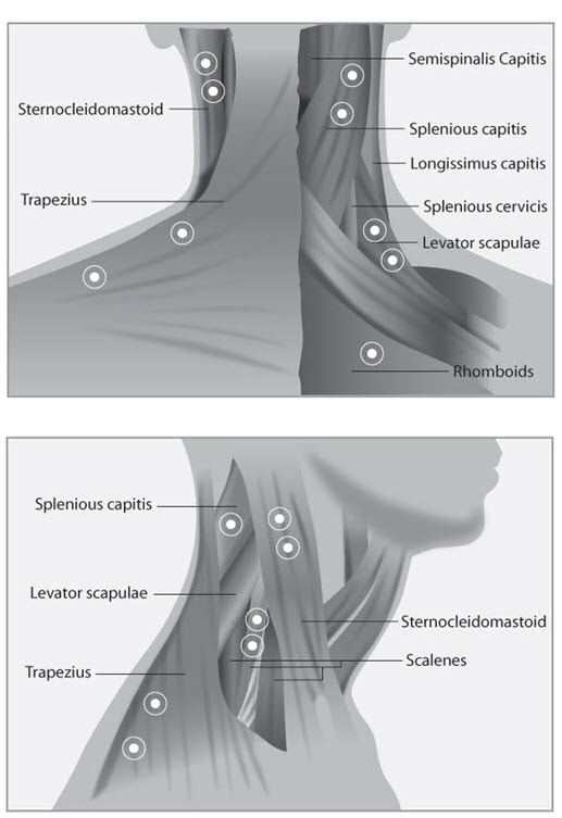 Diagnosis And Treatment Of Cervical Dystonia  Current And