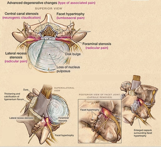 Paintv Rationale For Treatment Focus On Chronic Low Back Pain
