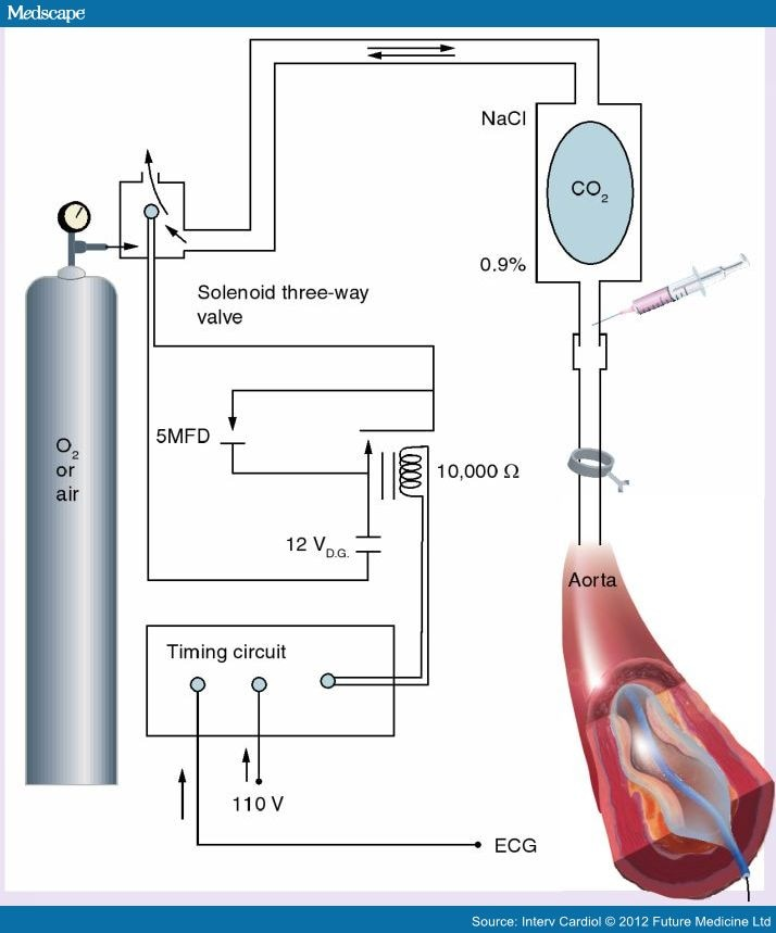 The intra aortic balloon pump in high risk pci figure 4 ccuart Images