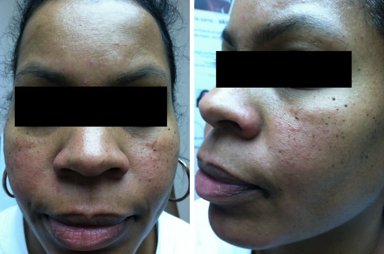 Acne And Rosacea A Closer Look At Skin Of Color