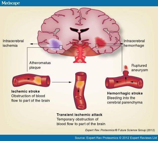 Potential Blood Biomarkers for Stroke