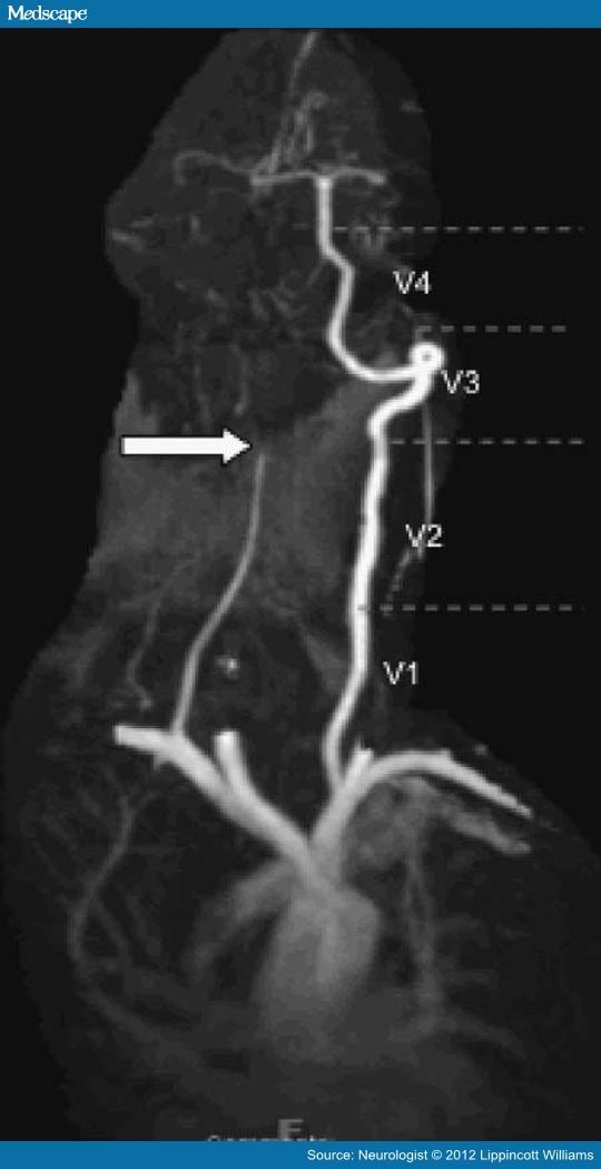 Imaging Characteristics Of Vertebral Artery Dissection