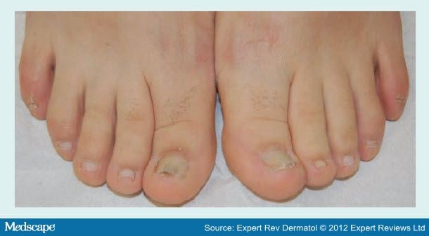 Onychomycosis In Children