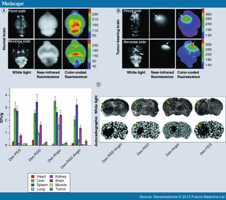 Nanoparticles For Imaging And Treating Brain Cancer