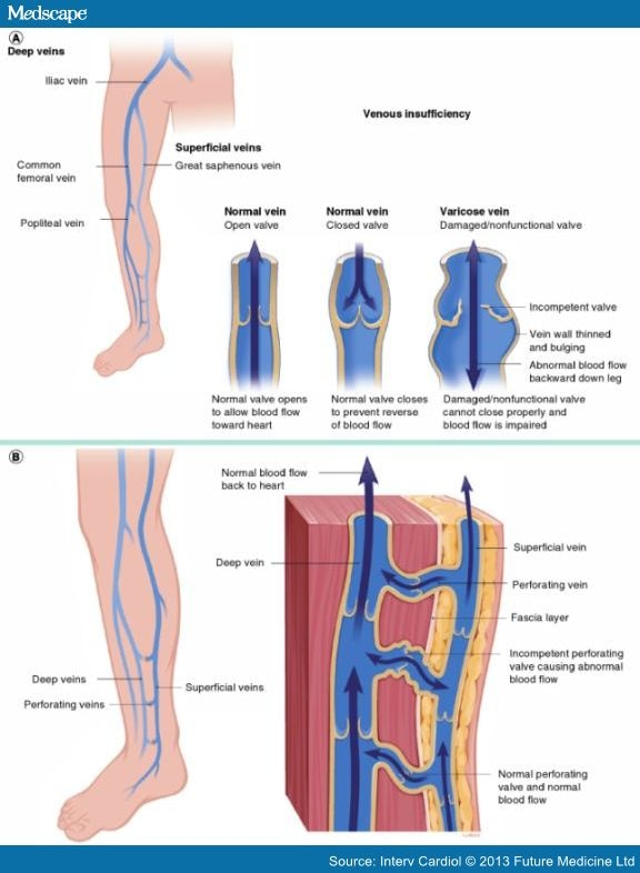 pathophysiology of varicose veins