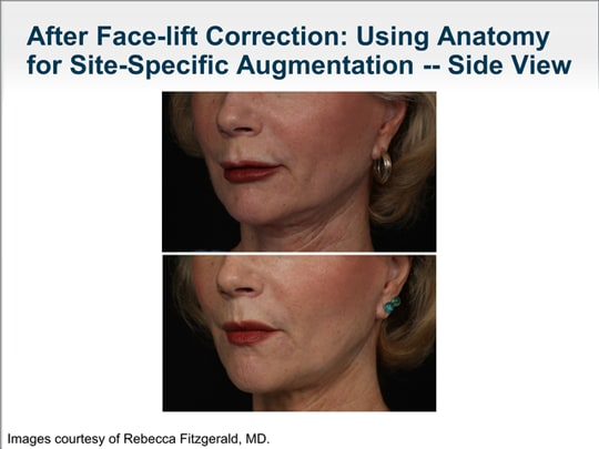 Developing an Aesthetic Treatment Plan: Evaluating Facial Anatomy