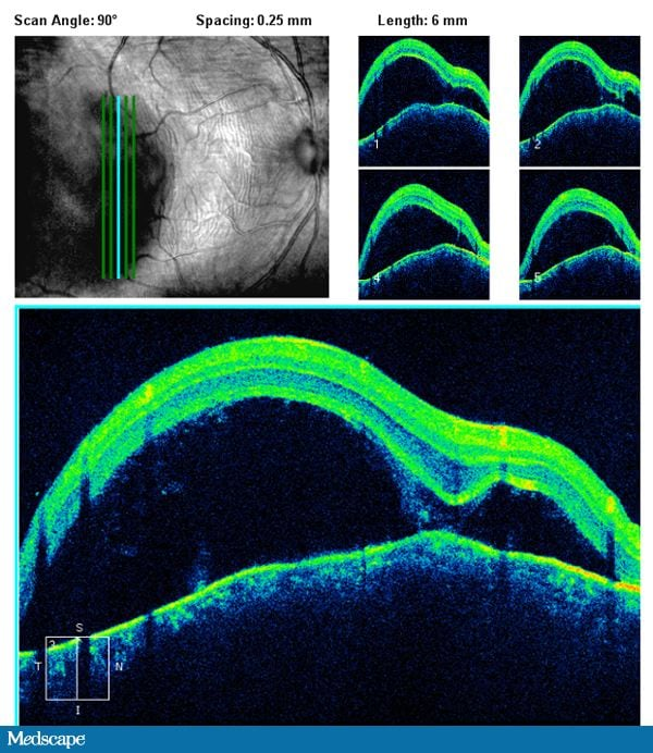 Clinical Findings Such As The Temporal Injection And Serous Detachment With Choroidal Folds Support This DiagnosisOptical Coherence Tomography OCT