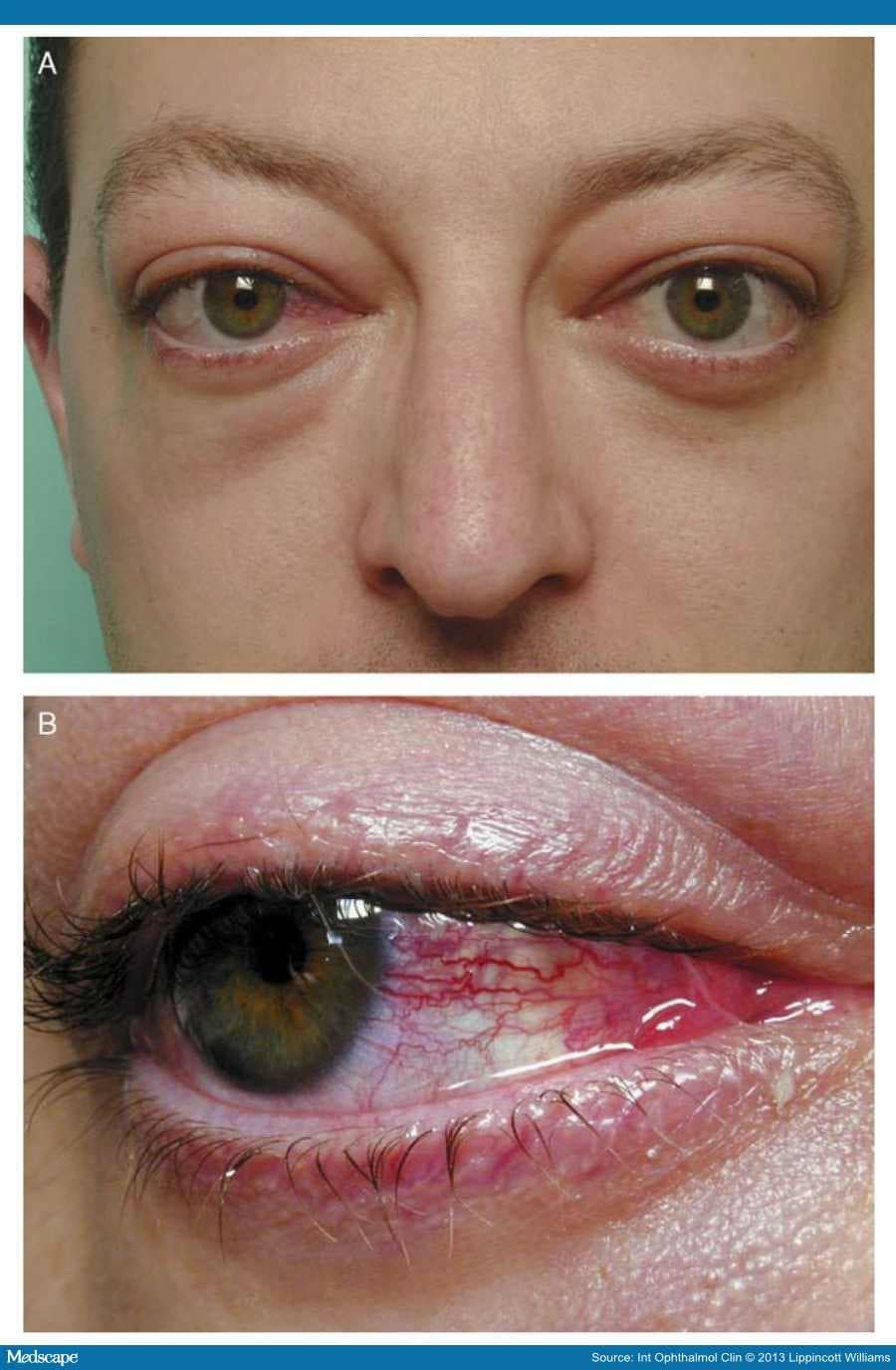 Advances In The Management Of Thyroid Eye Disease