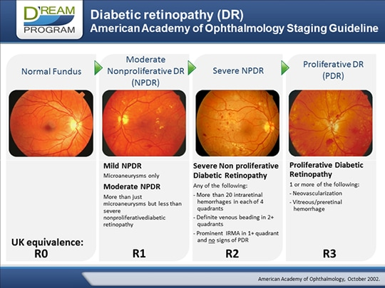 Current Challenges In Diabetic Retinopathy Early