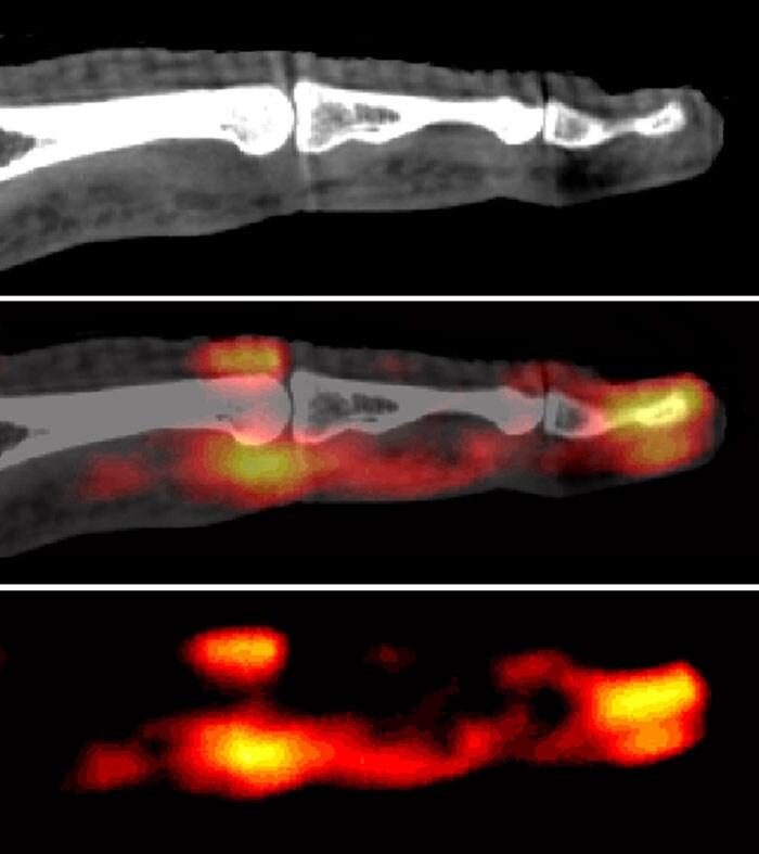 enthesis-related arthritis