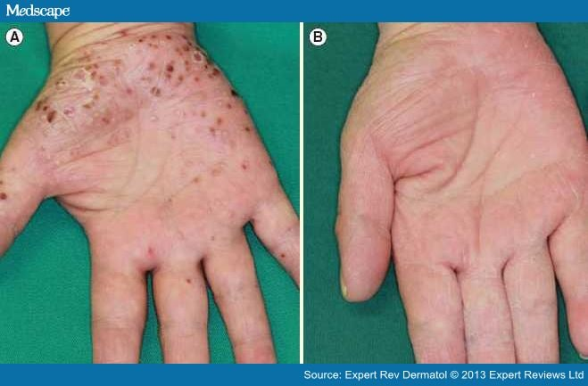 Evolution Of Targeted Phototherapy For Psoriasis