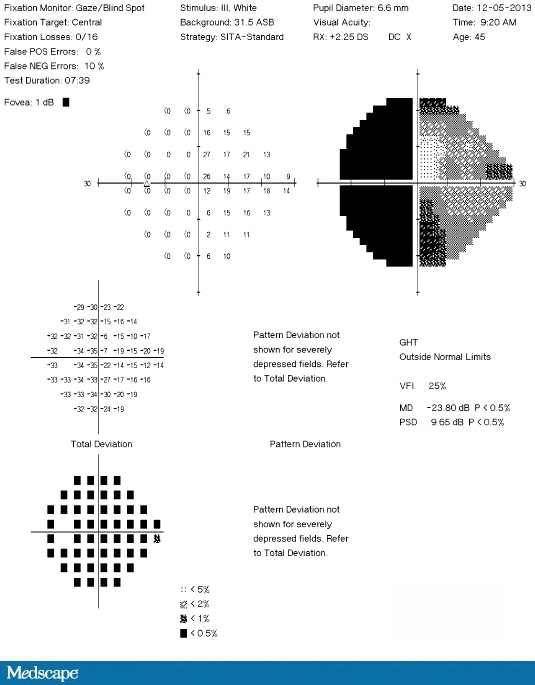 A 45-Year-Old Man With Progressive Vision Loss In One Eye-8019