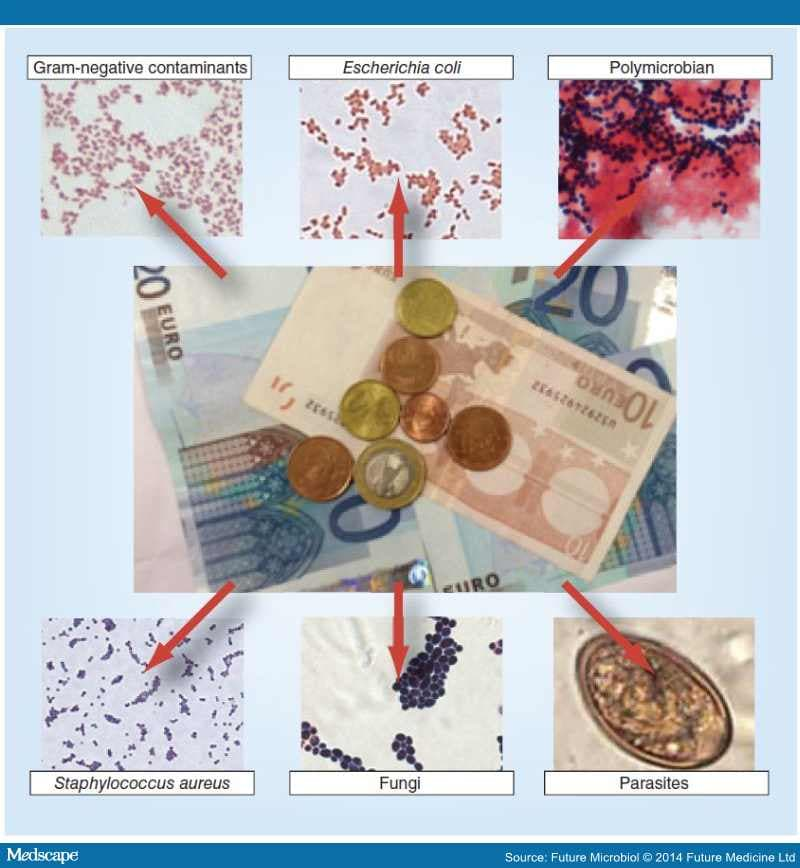 The accumulative deposit Blitz-income (Alfa-Bank)