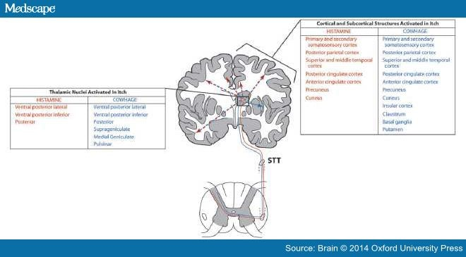 The Neurology of Itch