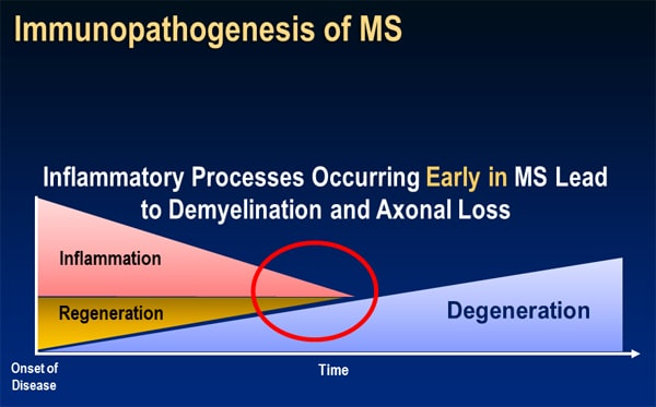 an introduction to demyelination leading to multiple sclerosis diagnosis Acute hemorrhagic leukoencephalitis (weston-hurst syndrome)  and demyelination leading to  diagnosis of multiple sclerosis and the.