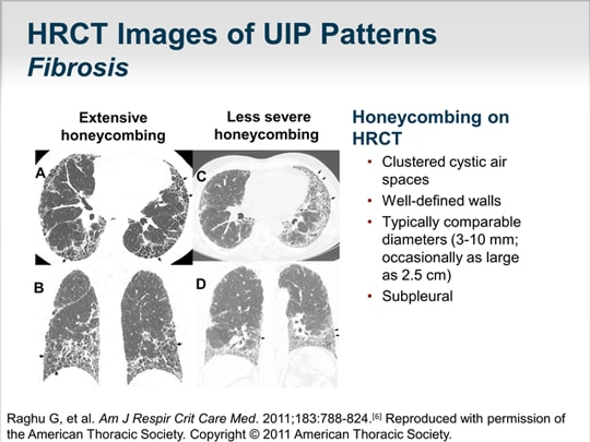 Demystifying Idiopathic Pulmonary Fibrosis The Art And The Science Adorable Uip Pattern