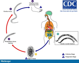helminth infectious disease