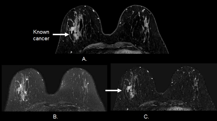 Application Of Mri For Treatment Decisions In Breast Cancer