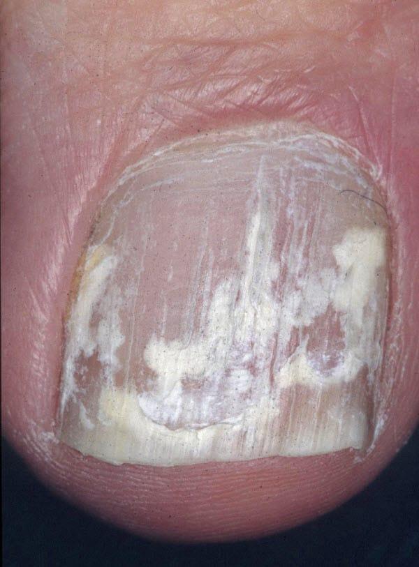 Effective Treatment of Onychomycosis