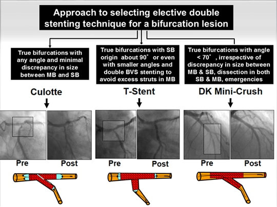 A Virtual Journey of Complex Stenting