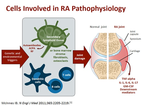 Advances In Rheumatoid Arthritis Treatments From