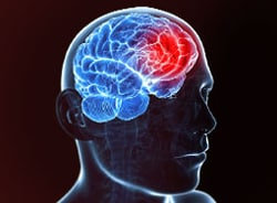 Fast Five Quiz: Migraine
