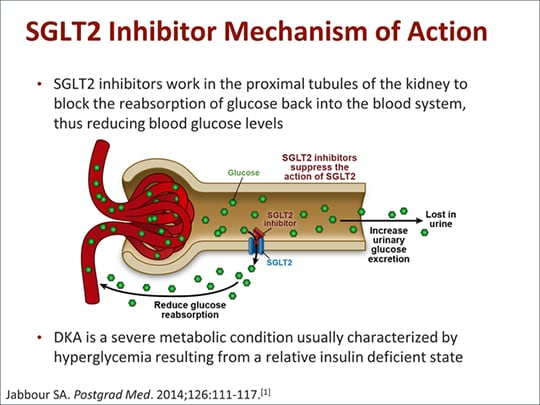 sglt2 inhibitors and diabetic ketoacidosis  what u0026 39 s all the