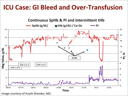 Blood Management in Critical Care: Role of Continuous Hemoglobin