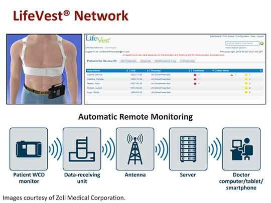 Addressing Patients At High Risk For Sca Evaluating Wearit Ii