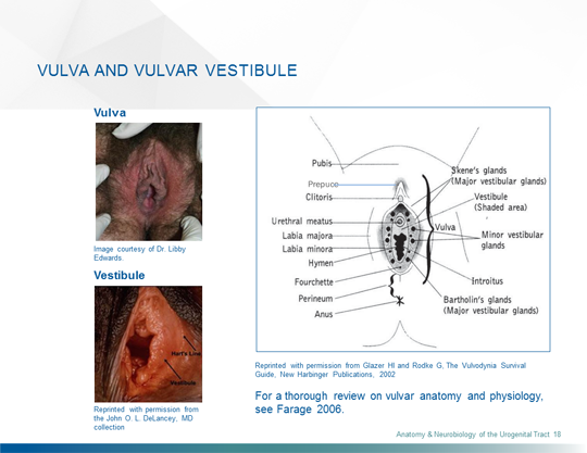 Vulvodynia A Common And Under Recognized Pain Disorder In Women And
