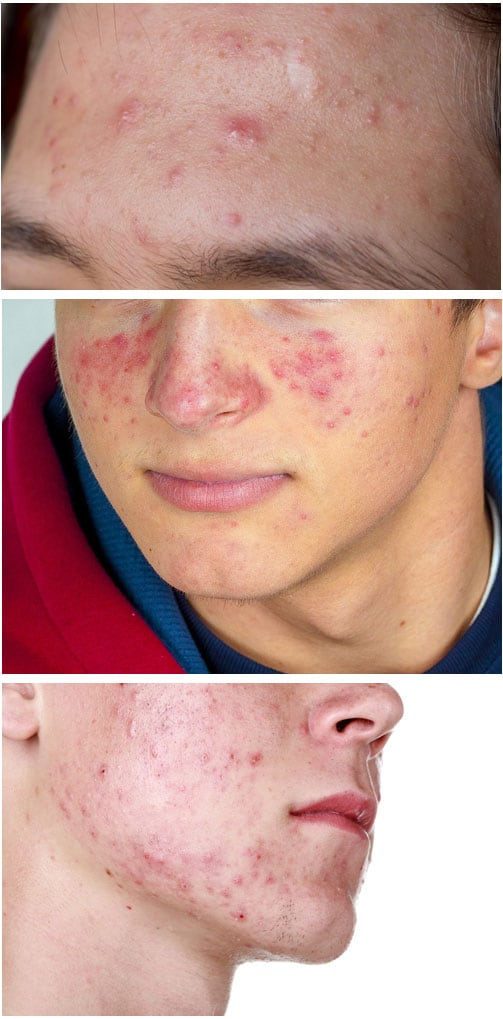 the acne clinical challenge test and improve your skills