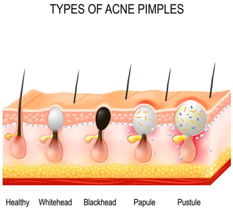 The Acne Clinical Challenge: Test and Improve Your Skills