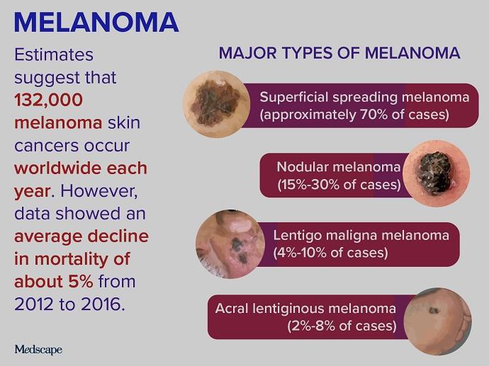 Trending Clinical Topic: Melanoma
