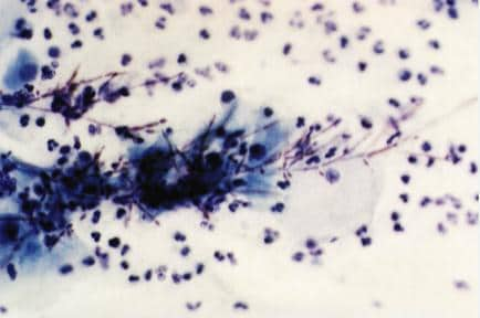 Doubtful. abnormal glandular pap smear in vagina mine