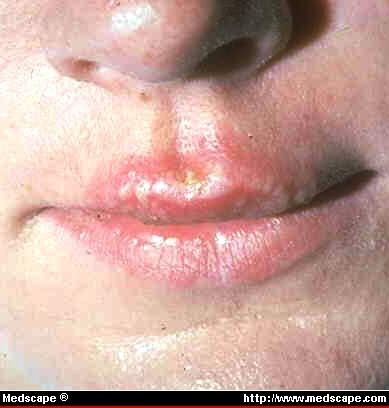 herpes simplex virus treatment guidelines