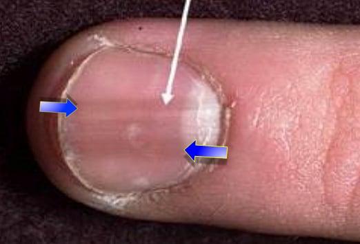 Veränderungen Der Fingernägel 15 Schlüssel Zur Richtigen Diagnose
