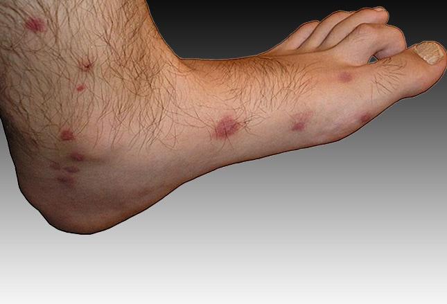 Infizierte Mückenstiche