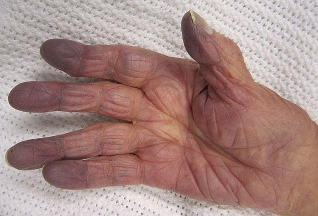 Flecken handfläche braune Warzenarten im