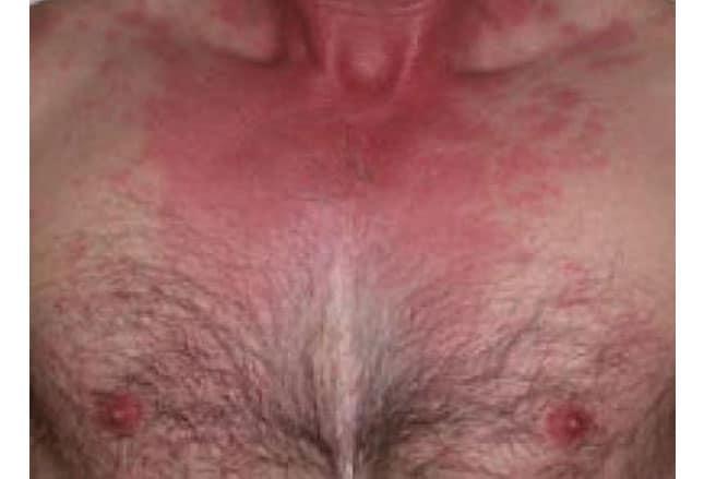 sepsis flecken