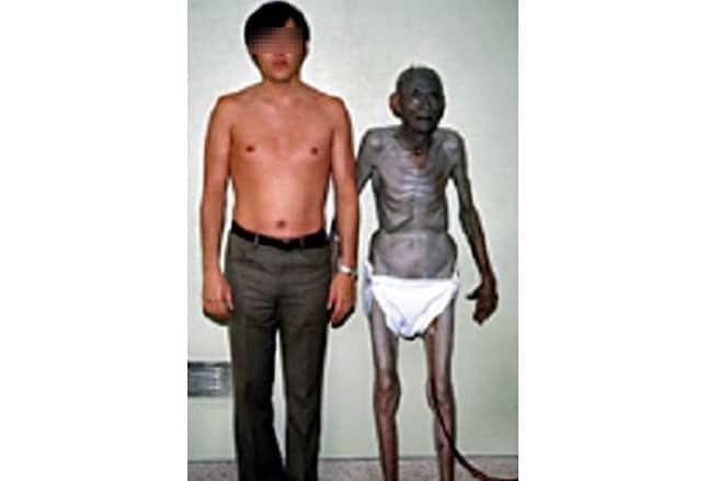 Vergiftungen 10 Hinweise Auf Der Haut