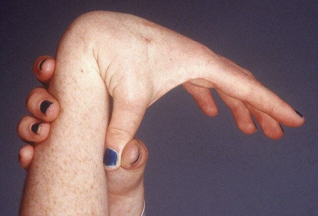 starke Schmerzen, Rheumatest jedoch negativ